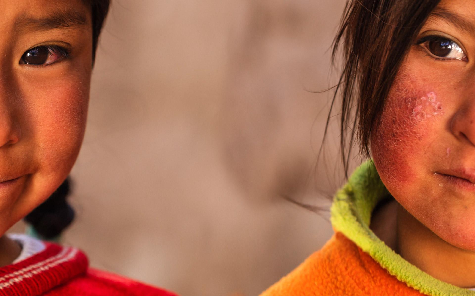 fn barns rättigheter artikel 1